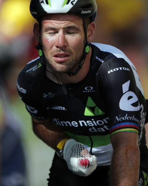 Britain's Mark Cavendish crosses the finish line after he crashed during the sprint of the fourth stage of the Tour de France cycling race over 207.5 kilometers (129 miles) with start in Mondorf-les-Bains, Luxembourg, and finish in Vittel, France, , Tuesday, July 4, 2017. (AP Photo/Christophe Ena)