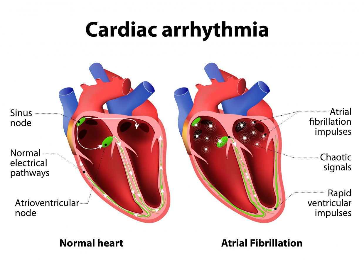 Atrial fibrillation, commonly referred to as AFib, is a common heart condition that has a higher than average prevalence along the rural Western Slope because of the high altitude.