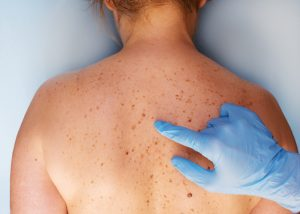 Tips for early detection of melanoma