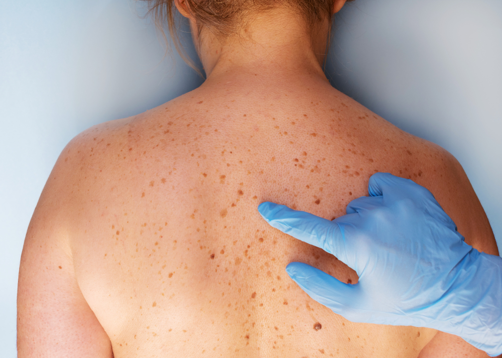 Tips For Early Detection Of Melanoma Postindependent Com